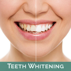 Teeth Whitening in Tallahassee