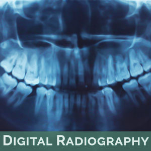 Digital Radiography in Tallahassee